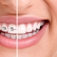 Generalitati despre aparatele dentare